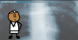 Costochondral Separation: Treatment & Recovery Time